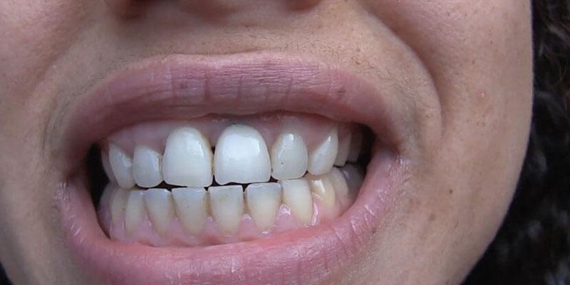 Tanden witter maken op een natuurlijke manier