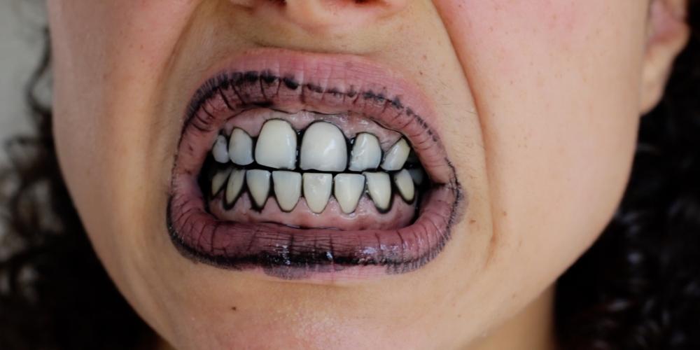 ivories tanden behandeling
